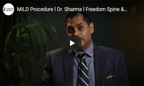 Dr. Sharma – MILD Procedure